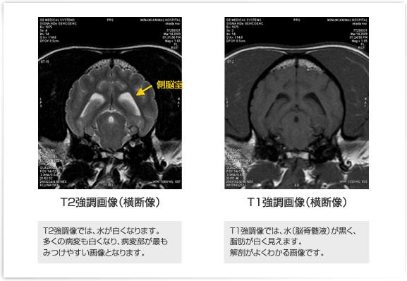 正常犬の脳